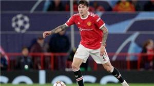 Đội hình dự kiến MU vs Everton: Lindelof thay Maguire, Cavani thế chỗ Ronaldo?