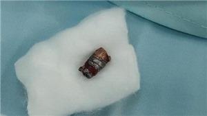Điều tra vụ dùng súng bút bắn đứt động mạch cổ một thanh niên