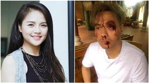 Giật mình với hình ảnh diễn viên Việt Anh và Thu Quỳnh 'bị đánh' tả tơi, mang nhiều thương tích