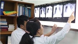 Khuyến cáo mới nhất của Bộ Y tế về phòng chống dịch bệnh do virus corona