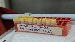 Tín hiệu tích cực từ một nghiên cứu về thuốc điều trị COVID-19