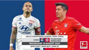 Link xem trực tiếp bóng đá. Lyon vs Bayern Munich. Xem trực tiếp bóng đá cúp C1
