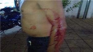 Bắt tạm giam đối tượng cố ý gây thương tích làm nhiều người bị thương