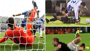 Top 10 chấn thương kinh hoàng trong bóng đá