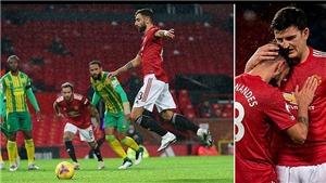 Tin bóng đá MU 22/11: Bruno làm sáng tỏ tranh cãi trận MU- West Brom. Paul Pogba chấn thương