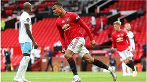 Lịch thi đấu cúp FA vòng 5: MU  vs West Ham, Swansea vs Mạn City, Barnsley vs Chelsea. FPT, SCTV
