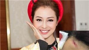 Hoa hậu Jennifer Phạm ngã trên sân khấu, phải đi cấp cứu