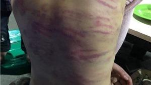 Phê chuẩn quyết định khởi tố bị can trong vụ hiếp dâm con riêng 'vợ hờ' ở Hà Đông, Hà Nội