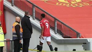 MU: Fan tranh cãi khi Martial bị đuổi vì đánh nguội Lamela