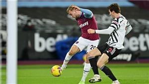 Link xem trực tiếp MU vs West Ham. FPT Play, SCTV17 trực tiếp bóng đá cúp FA