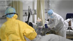 Dịch viêm đường hô hấp cấp do corona: Chuyên gia cảnh báo thêm dấu hiệu đặc trưng của người nhiễm corona