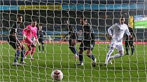 Vấn đề của Man City: Không phải khởi đầu Pep Guardiola mong đợi