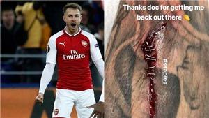 Aaron Ramsey phải vá chân bằng... ghim khi ghi bàn trước CSKA Moskva