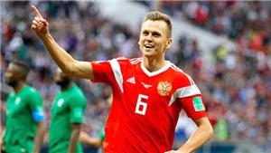 Người hùng World Cup của tuyển Nga bị nghi dùng doping, có thể bị treo giò tới 4 năm